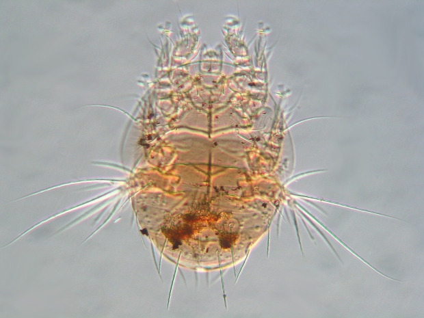scutacarid from Crossocerus April 2015 E